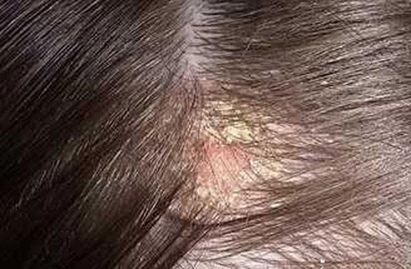 поредение волос при себорейном дерматите
