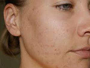 пятна на лице после угревой сыпи