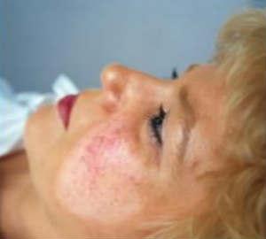 лечебная косметика при куперозе