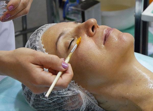 химический пилинг кожи вокруг глаз