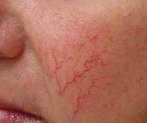 расширенные кровеносные сосуды на щеках