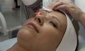 лазерное омоложение кожи вокруг глаз отзывы