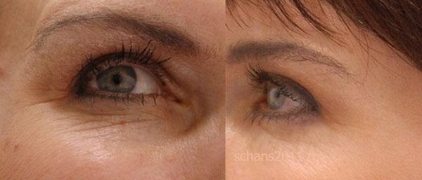 лазерное омоложение кожи вокруг глаз отзывы фото до и после