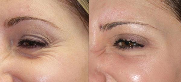 лазерное омоложение кожи вокруг глаз отзывы с фото