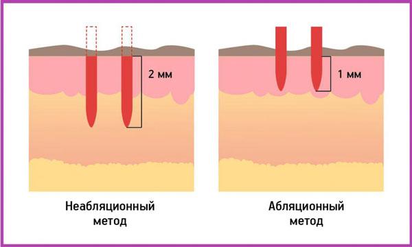 неабляционное омоложение кожи лица лазером