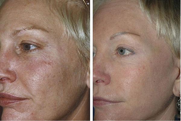 до и после неабляционного омоложения кожи