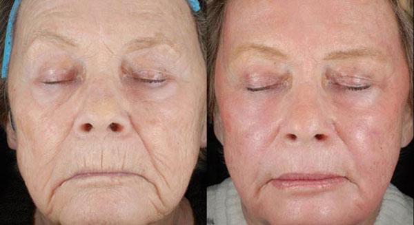 фото до и после лазеротерапии неабляционным методом