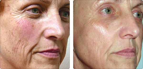 фото до и после омоложения кожи неабляционным способом