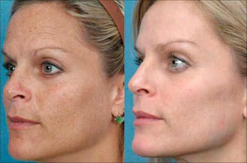 Методы омоложения кожи лица - современные безоперационные