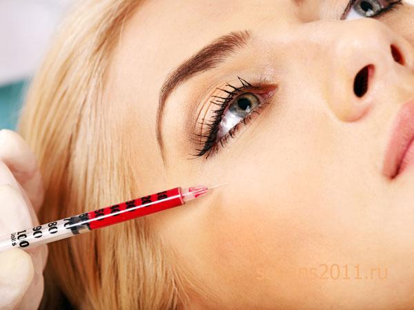 плазмолифтинг кожи вокруг глаз