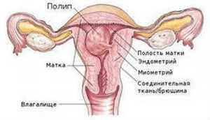 гиперплазия полипы