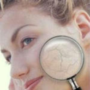особенности сухой кожи лица