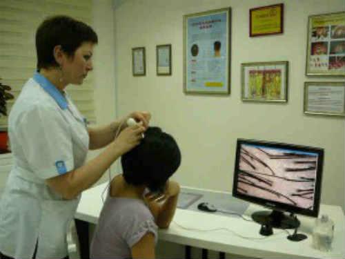 выпадение волос тест