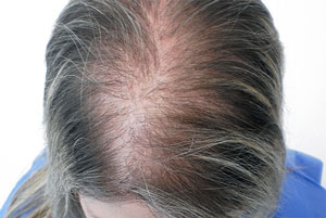 выадение волос при патологии щитовидки